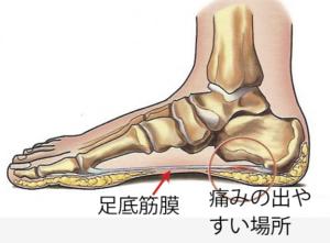 「足底筋膜画像」の画像検索結果