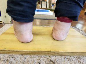 足のトラブル