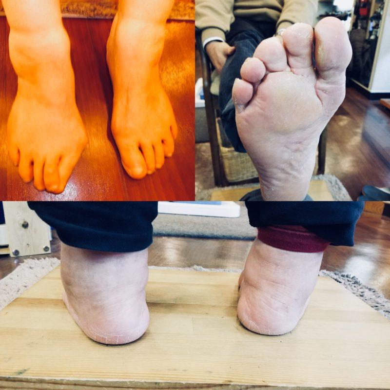 【2/10フットの日】足と靴の悩み、無料相談会